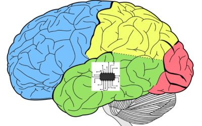 Un implant pour augmenter votre mémoire?