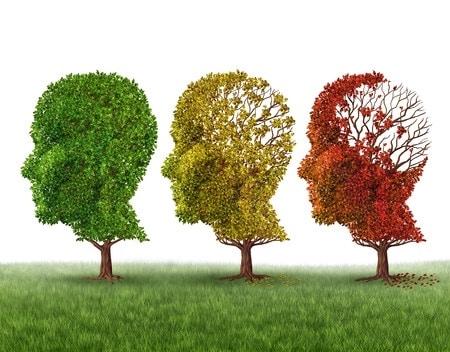 La maladie d'Alzheimer existe aussi chez les jeunes